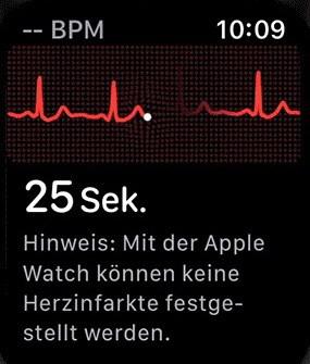 EKG Apple Watch