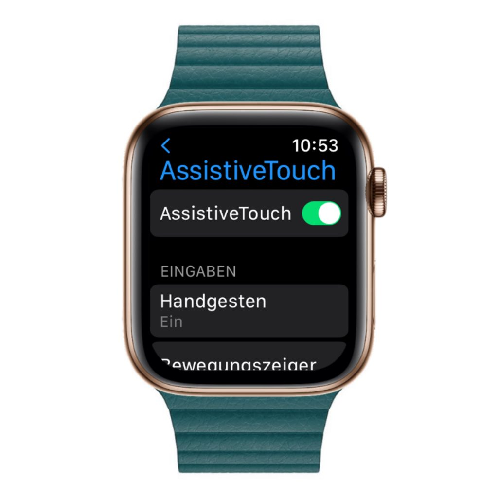 Apple Watch AssistiveTouch
